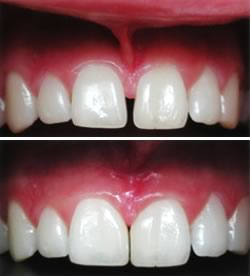 Frenectomy Before and After