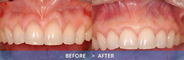 Know how graft you a do failed gum if What You