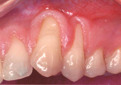 Gum grafting by Periodontist in Pittsburgh PA