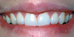After Cosmetic Dentistry Gum Surgery by Periodontist in Pittsburgh PA