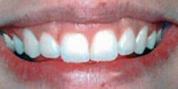 Gummy Teeth before Cosmetic Dentistry by Periodontist in Pittsburgh PA