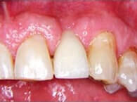 Ridge Preservation necessary when Teeth Extracted to Prevent Ridge Collapse, Periodontist Pittsburgh PA